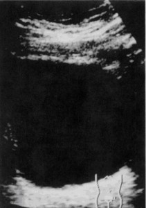 骨盤部超音波写真
