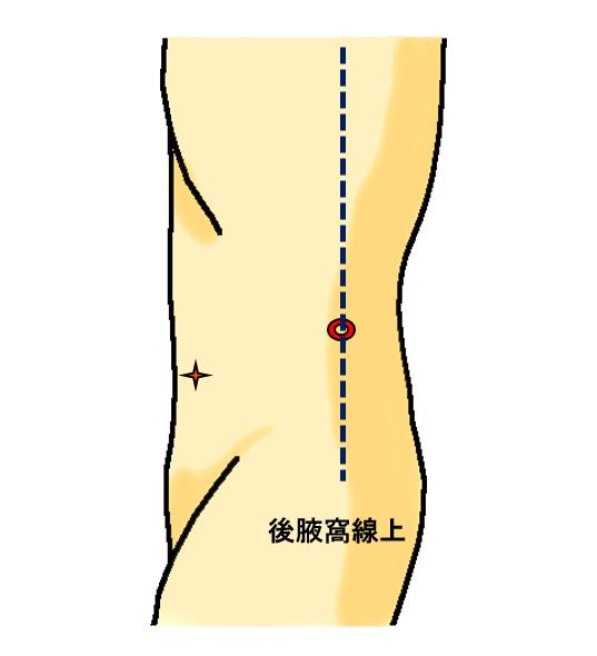 図4(単孔式腎摘除術のポート位置)