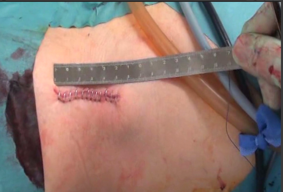 図8(単孔式腎摘除術の切開創)