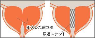 zenhidai52